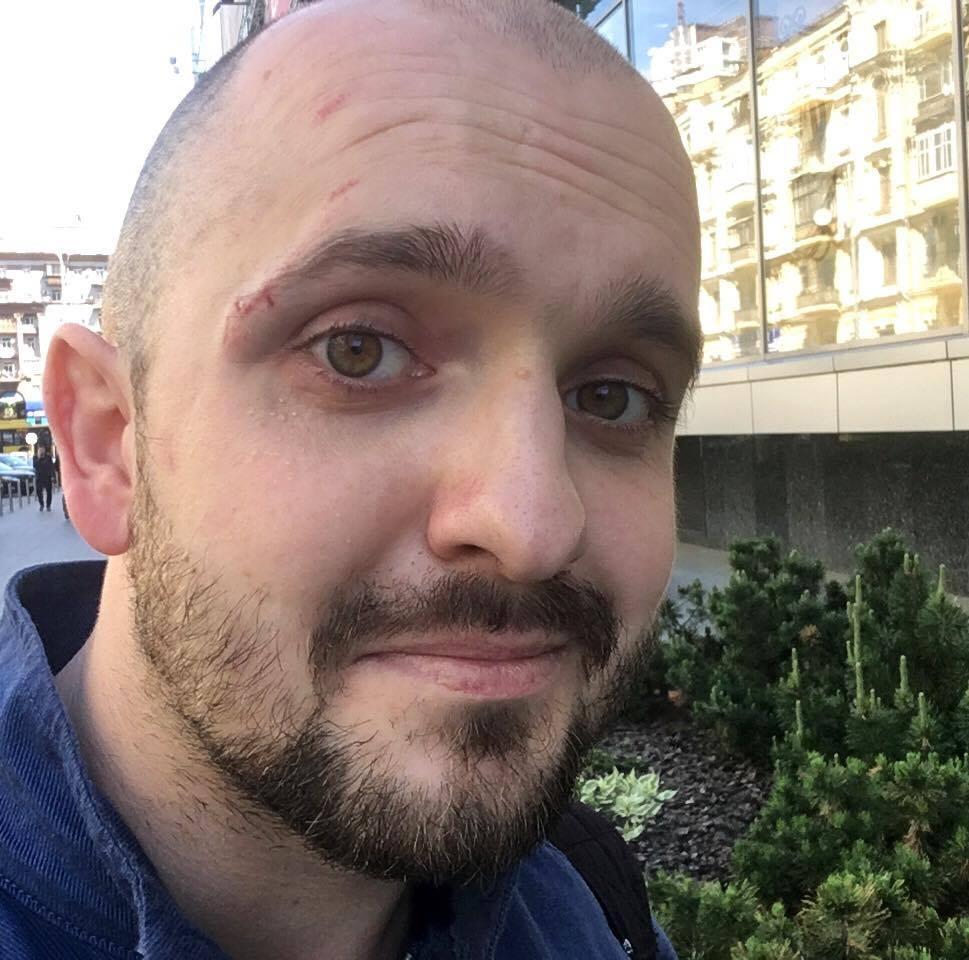 Василий Крутчак после нападения Гаврилюка