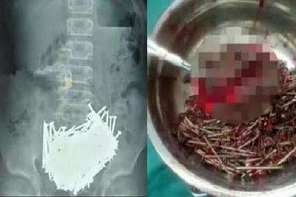 600 Nails Taken Out From stomach