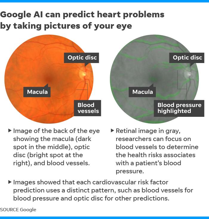 Google AI eye health Online