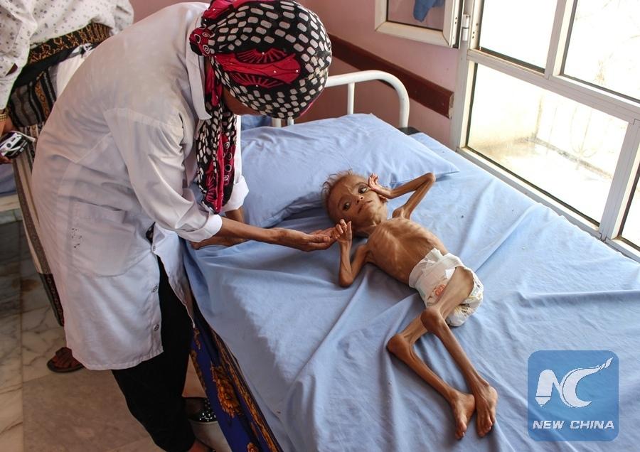 Йемен_голод